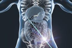 Colon cancer medical concept. Colorectal cancer awareness medical concept. Concept of cancer treatment and prevention, 3D illustration stock illustration