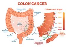 Colon cancer medical vector illustration scheme, anatomical diagram with cancer stages. And spreading to other organs Stock Images