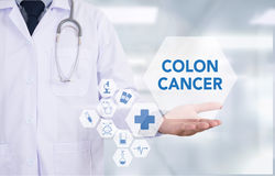 COLON CANCER. Medicine doctor hand working Professional doctor use computer and medical equipment all around, desktop top view stock image