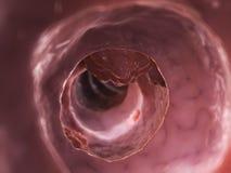 Colon tumor. 3d rendered illustration of a colon tumor Stock Photo