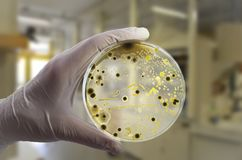 Colonies of different bacteria and mold fungi grown on Petri dish with nutrient agar. Close-up view. Hand in white glove holding plate with nutrient medium in royalty free stock photo