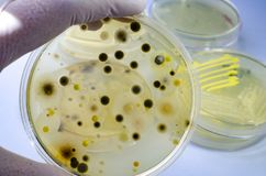 Colonies of different bacteria and mold fungi grown on Petri dish with nutrient agar. Close-up view. Hand in white glove holding plate with microbes stock image