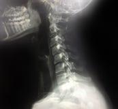 Colonna vertebrale dei raggi x e testa del cranio Immagini Stock