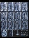 Colonne lombo-sacrée d'IRM, intra-foraminal droite L5-S1 d'hernie photo stock