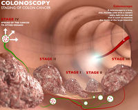 Colonoscopy and probe. Colonoscopy examination colon digestive system Stock Images