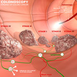 Colonoscopy and probe Royalty Free Stock Photos