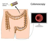 Free Colonoscopy Procedure Royalty Free Stock Photo - 22132885