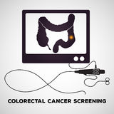 Colonoscopy Royalty Free Stock Photography