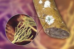 Colony of Penicillium fungus on the sausage surface. Colony of Penicillium mold on the surface of smoked sausage and closeup view of Penicillium fungus, photo vector illustration