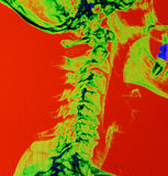 Color enhanced X Ray of a spine Stock Photography