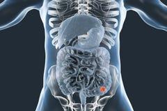 Colon cancer medical concept. Colorectal cancer awareness medical concept, 3D illustration showing cancerous tumor inside large intestine vector illustration