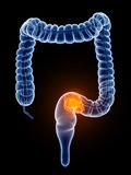 Colorectal cancer. 3d rendered, medically accurate illustration of colorectal cancer Royalty Free Stock Photography