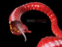 Colorectal cancer, isolated black background 3d Illustration.  stock illustration