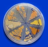 Microbiology: Ioslated coloured Baceterial Colonies. Colored Bacterial Colonies displayed in culture plate in a microbiology laboratory Stock Photos