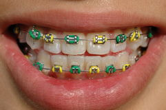 Colorful brace of a teenager. Colorful brace in green and gold Royalty Free Stock Photography