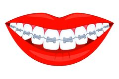 Colorful cartoon healthy smile in braces stock illustration