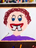 Colorful drawing: malocclusion. Boy with crooked teeth Stock Photo