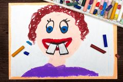 Boy with crooked teeth. Colorful drawing: malocclusion. Boy with crooked teeth Royalty Free Stock Image