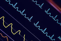 Colorful ECG waves on the monitor Royalty Free Stock Photos