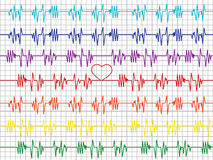 Colorful graphs on the cardiogram tape Royalty Free Stock Photography