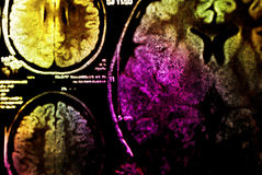 Colorful MRI of brain. Background Royalty Free Stock Photo