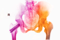 Colorful pelvis  x-rays image Stock Images