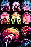 Colorful x-ray scan. Of brain on dark background Stock Photos