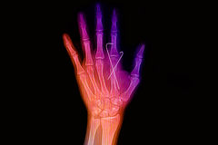 Colorful wrist and hand x-rays image Royalty Free Stock Photos