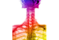 Colorful  x-ray T-L spine Stock Image