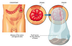 Colostomy. Medical illustration of an operation of colostomy Royalty Free Stock Image