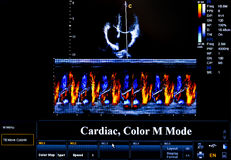 Free Colourful Ultrasound Monitor Image. Cardiac Royalty Free Stock Photos - 72413658
