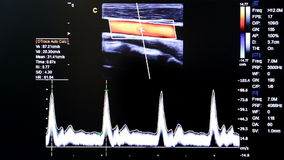 Colourful ultrasound monitor image. Different images. Modern echocardiography (ultrasound) machine monitor. Colour image. New hospitl equipment. Cardiac, Elbow stock video footage