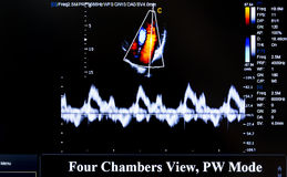 Free Colourful Ultrasound Monitor Image. Four Chambers View Stock Images - 76657564