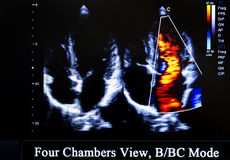 Colourful ultrasound monitor image. Four Chambers View. Modern echocardiography (ultrasound) machine monitor. Colour image. New hospitl equipment for a better royalty free stock images