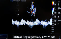 Colourful ultrasound monitor image. Mitral Regurgitation Royalty Free Stock Photography