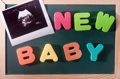 Colourful word new baby with Ultrasound image print at blackboardas background Stock Photography