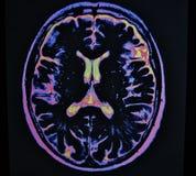 Colpo del cervello di Mri Fotografia Stock
