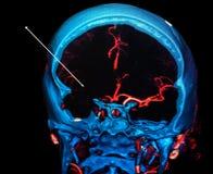 Colpo ischemico del cervello Ricostruzione di scansione TC Fotografia Stock Libera da Diritti