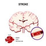 Colpo ischemico nell'arteria cerebrale e nell'embolo illustrazione di stock