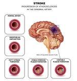 Colpo nell'arteria del cervello Fotografie Stock Libere da Diritti