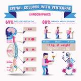 Coluna espinal Infographics Fotografia de Stock