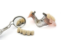 Combined fixed and mobile prosthesis Royalty Free Stock Photography