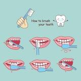 Come pulire i vostri denti, Immagini Stock