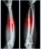 Comminuted вал трещиноватости ulnar косточки Стоковые Изображения RF