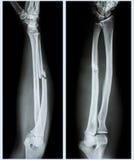 Comminuted вал трещиноватости ulnar косточки Стоковое Изображение