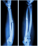 Comminuted fracture shaft of ulnar bone. X-ray forearm (  front , side ) : Comminuted fracture shaft of ulnar bone ( forearm bone Royalty Free Stock Photo