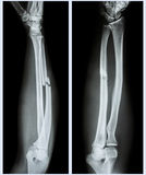 Comminuted fracture shaft of ulnar bone. X-ray forearm (  front , side ) : Comminuted fracture shaft of ulnar bone ( forearm bone Stock Image