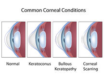 Common corneal conditions vector illustration