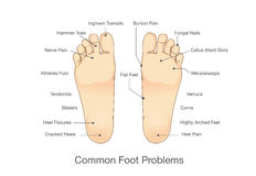 Common foot problems. Illustration about disease and abnormality of human foot vector illustration