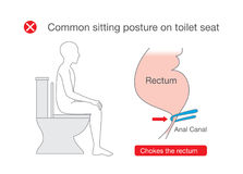 Common posture while sitting on toilet make rectum discomfort. Royalty Free Stock Photography